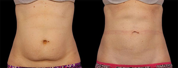 CoolSculpting Before & Afters