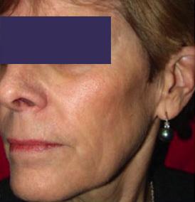 CO2 Skin Resurfacing