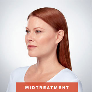 Kybella Fat Removal (For Double Chin)