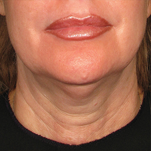 Ultherapy Non Invasive Face lift